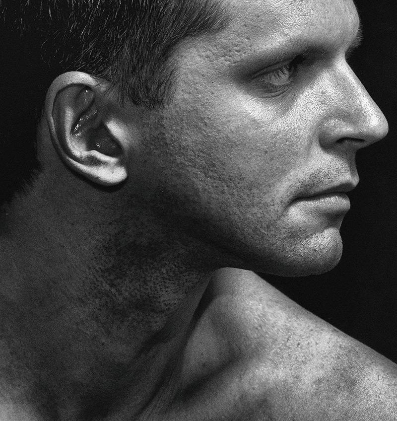 Behandlinger til mænd i Hasseris Skin Lounge
